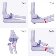 Monteggia-Fraktur: Ursachen, Diagnose und Behandlung