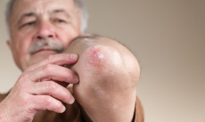 Schuppenflechte (Psoriasis): Ursachen, Symptome & Behandlung