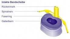 Bandscheibenvorfall (Prolaps): Ursachen, Symptome und Therapie