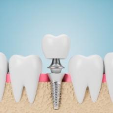 Neue Zähne durch Implantologie: Das sind die Vorteile