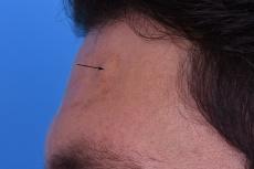 Endoskopische Entfernung von Lipomen und Osteomen der Stirn und Wange ohne Narben