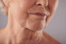 Lippenfalten durch Östrogenmangel: Entstehung & Behandlung