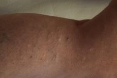 © Erhabene, blasse Närbchen acht Jahre nach Miniphlebektomie.