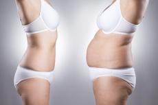 Die Liposuktion kann ein Lipödem nachhaltig bessern