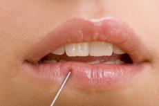 Lippenvergrößerung mit Hyaluronsäure oder Eigenfetttransplantation: Ablauf & mögliche Komplikationen