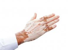 Behandlung von Vitiligo (Weißfleckenkrankheit) mit TCM