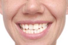 3 Formen von Zahnengständen: Können Weisheitszähne zu schiefen Zähnen führen?