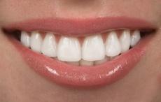 Aufhellen einzelner dunkler Zähne - Wie ist der Ablauf des internen Bleachings?