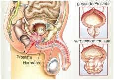 Gutartige Prostatavergrößerung – droht eine Operation?