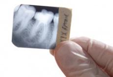 Implantate setzen mit Bohrschablonen