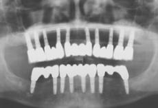 Zahnimplantate bei schwierigen Voraussetzungen