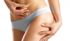 Fettabsaugung an Bauch und Oberschenkeln