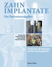 Zahnimplantate - Ein Patientenratgeber